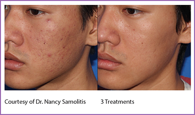 Micro-needling - Fruition Skin Therapy